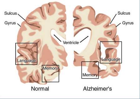 research papers for alzheimers disease
