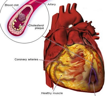 Angina Associated Heart Disease