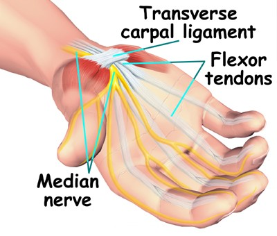 How to Treat Carpal Tunnel Syndrome  Carpal Tunnel Syndrome