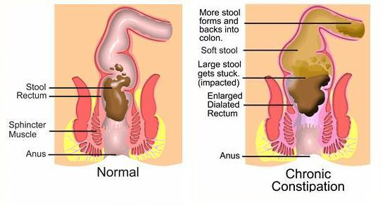 How to Treat Constipation  Constipation
