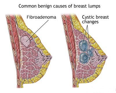 Fibrocystic Breast