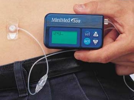 Insulin Infusion Pump