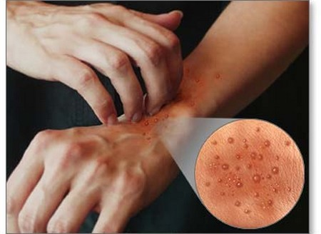 Stop Dermatitis