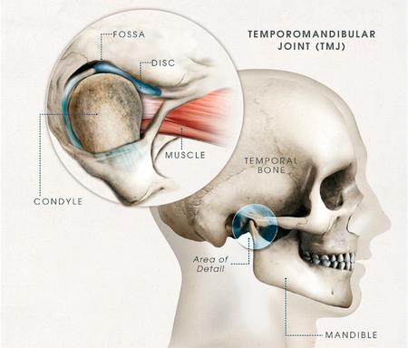 Temporomandibular Joint Disorders (TMJ)