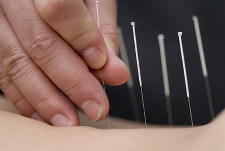 How to Use Acupuncture to Treat Various Illnesses  Acupuncture