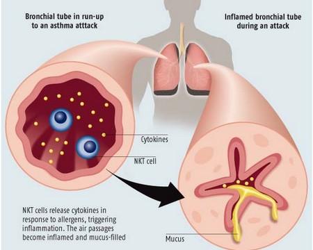 How to Treat Asthma in Children  Asthma in Children 5