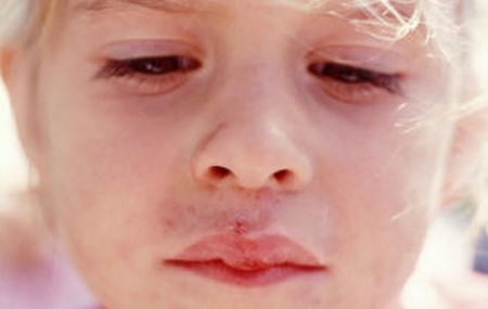 How to Treat Cold Sores in Children  Cold Sores Children 5