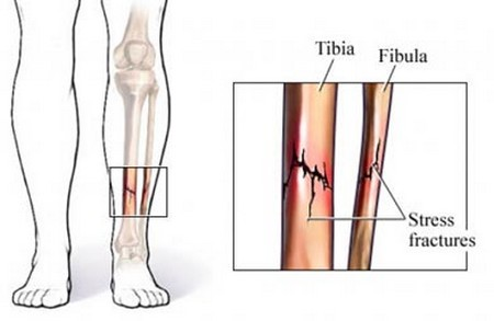 How to Treat Stress Fractures  Stress Fractures