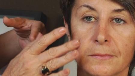 How to Prevent Age Spots Age Spots