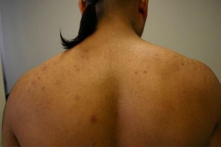 How to Remove Body Acne Body Acne