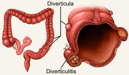 How to Manage Diverticulitis Pain Diverticulitis Pain