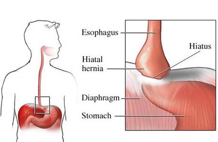 How to Treat Hiatal Hernias Naturally Hiatal Hernias