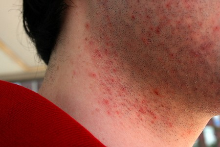 How to Prevent Razor Bumps Razor Bumps