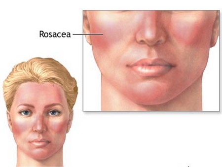 How to Treat Rosacea Naturally Rosacea Naturally