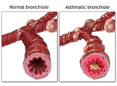 How to Eliminate Asthma Attack Asthma