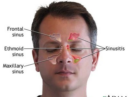 How to Get Rid of a Migraine or Sinus Headache Sinus Headache