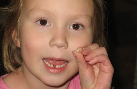 How to Pull a Loose Tooth Pull Loose Tooth