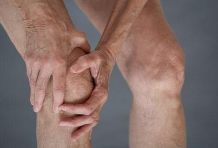 How to Recognize the Signs of Arthritis Arthritis