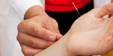 How to Stop Smoking with Acupuncture Smoking with Acupuncture