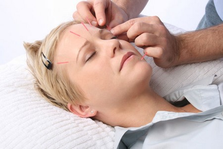 How to Treat Wrinkles with Acupuncture Treat Wrinkles