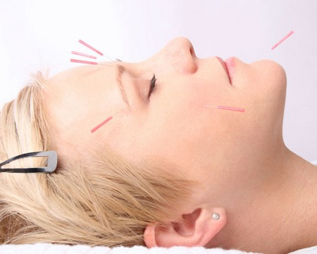 How to Use Acupuncture to Treat Hair Loss Use Acupuncture1