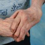 How to Manage Some Forms of Arthritis