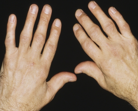 How to Get Rid of Arthritis with Home Remedies arthritis