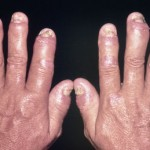 How to Treat Psoriatic Arthritis Naturally