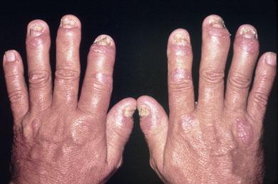 How to Treat Psoriatic Arthritis Naturally psoriatic arthritis