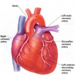 How to Deal with Pain and Discomfort in Heart Disease