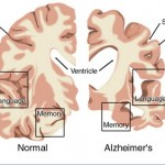 How to Keep Alzheimer's Disease From Striking You