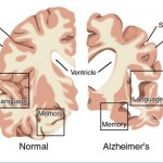 How to Treat Alzheimer's Disease