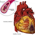 How to Live With Angina Associated with Heart Disease