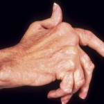 How to Control Arthritis