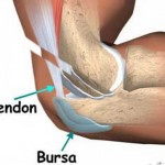 How to Treat Bursitis