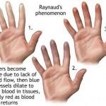 How to Treat Raynaud's Disease/Phenomenon