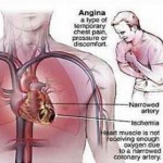 How to Cure Angina Pectoris with Drug Treatment