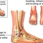 How to Treat Sprains in Children