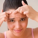 How to Prevent the Occurrence of Acne