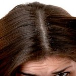 How to Overcome Dandruff Naturally
