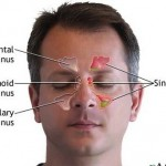How to Get Rid of a Migraine or Sinus Headache