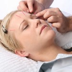 How to Treat Wrinkles with Acupuncture