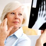 How to Live with Rheumatoid Arthritis for Life